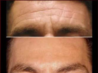 Botox na całe czoło