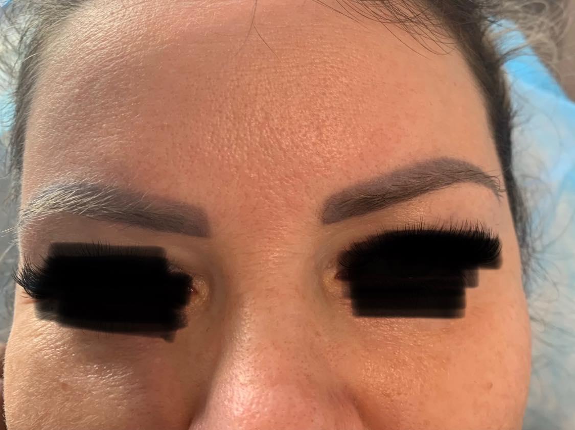 Wykorzystaj czas pracy z domu i usuń laserowo niechciany makijaż permanentny brwi