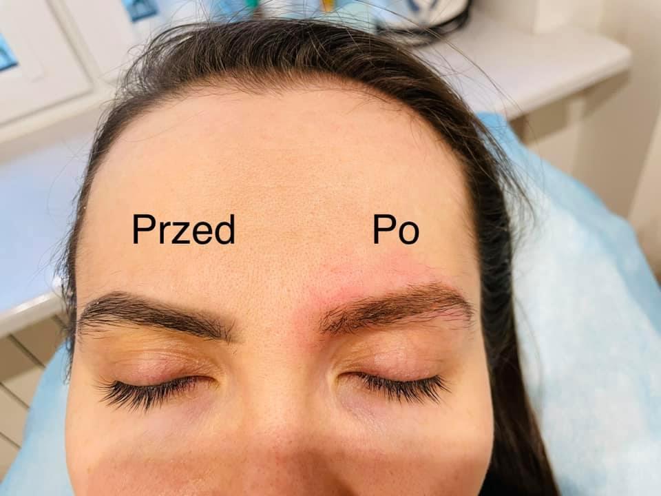 Laserowe usuwanie starego makijażu permanentnego
